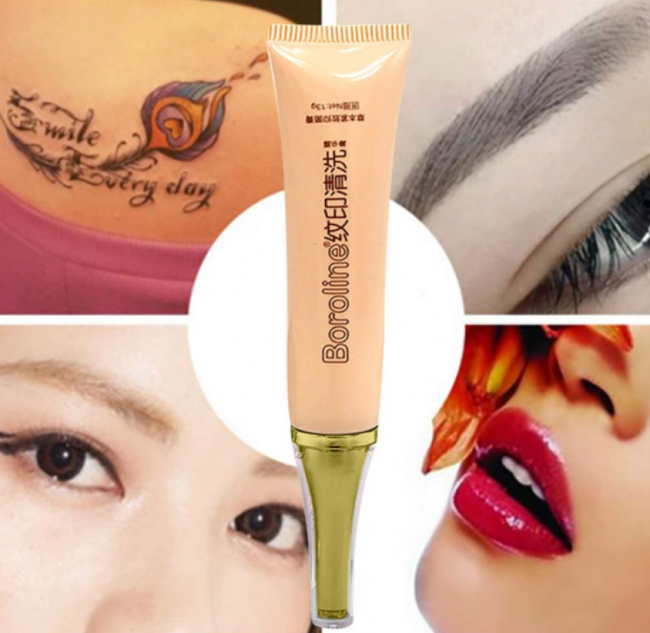Tattoo Removal Creams: A Guide for Beginners